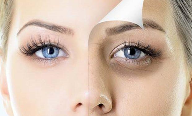 Göz Altı Morlukları Neden Olur? Göz Altı Morlukları Nasıl Geçer?